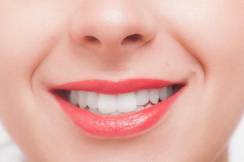 ちゃんと歯磨きできていますか?美しい歯を保ちたいあなたへ